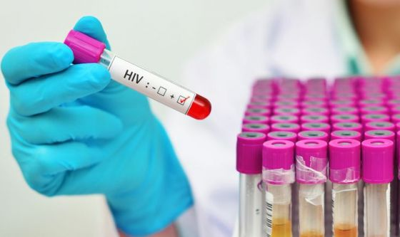 HIV, 1 su 7 non sa di averlo. In arrivo il test fai-da-te