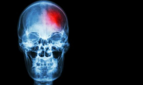 Aprile mese della prevenzione dell'ictus cerebrale