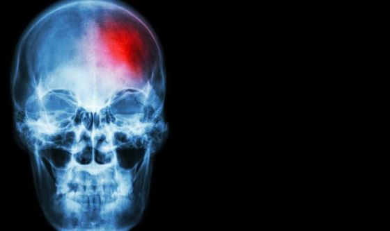 Ictus: dai farmaci al ricovero, le parole chiave delle cure