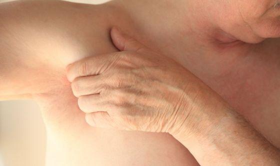 Conosci l'acne inversa? Colpisce le zone più intime