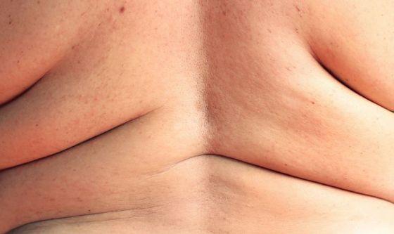 Ex-obesi, in Italia numero record di interventi