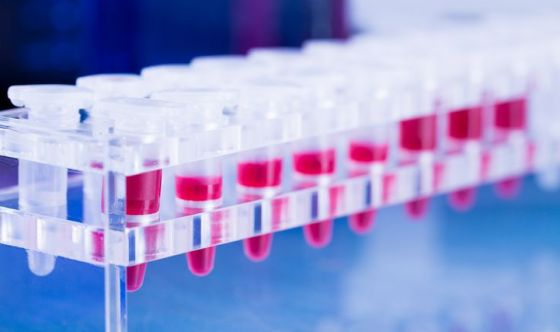 Leucemia linfatica cronica: AIFA approva venetoclax