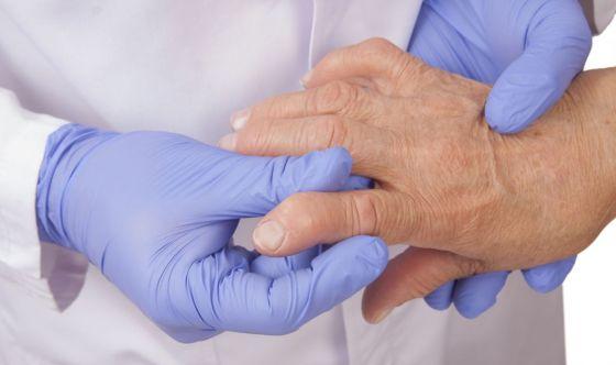 Artrite reumatoide: solo il 40% dei malati segue le terapie