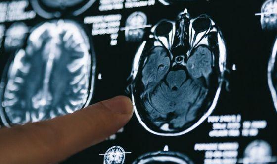Sempre più giovani a rischio Alzheimer
