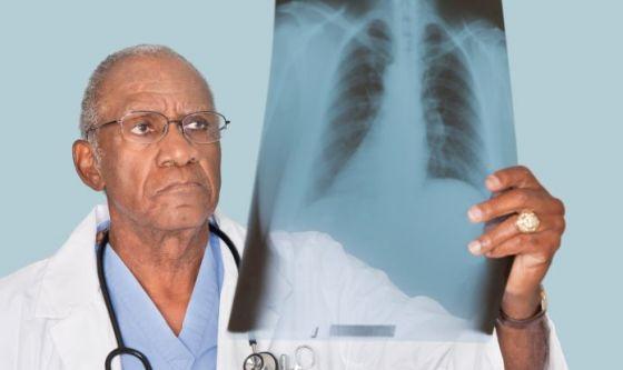 Tumori polmonari: Alectinib riduce il  rischio