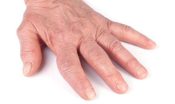 Spondilite anchilosante: quanta fatica per la diagnosi