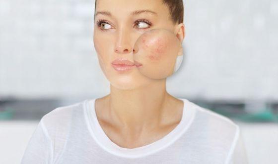 Rosacea, l'importanza di affidarsi al dermatologo