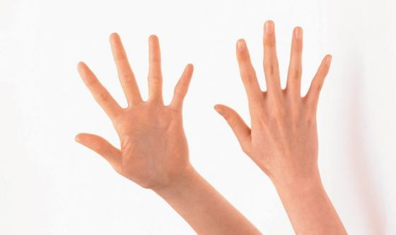 Mani vip sempre più rifatte
