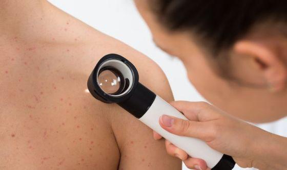 Maggio mese della prevenzione del Melanoma