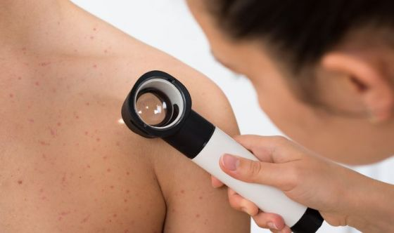 Melanoma in aumento, un giovane su tre non usa crema solare