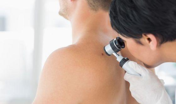 Melanoma, l'efficacia dell'immuno-oncologia