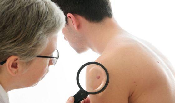 Melanoma: colpisce più al nord che al sud