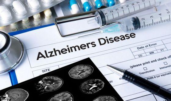 Così si recupera la memoria in soggetti affetti da Alzheimer