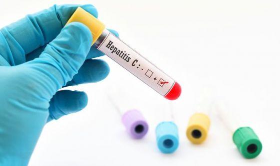 Epatite C: le cure ci sono, ma i malati non si trovano
