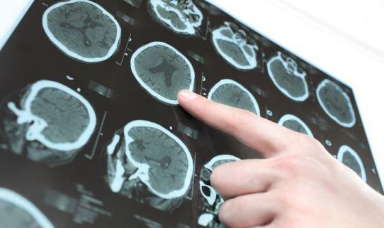 Parkinson: scovata l'alterazione all'esordio della malattia