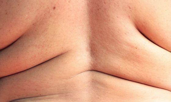 4 marzo: Giornata Mondiale dell'Obesità