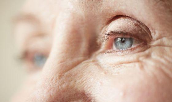 Occhio secco: ne soffrono 6 overcinquantenni su 10