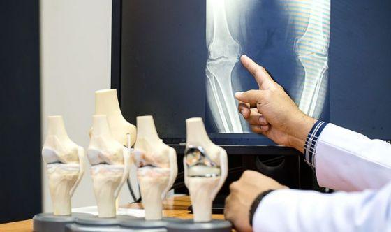 Osteoporosi: cattiva gestione di chi ne soffre