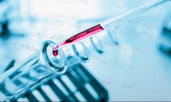 Papilloma virus: per rintracciarlo basta un test delle urine