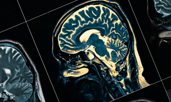 Parkinson sporadico: in arrivo nuova molecola