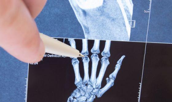 FLAMIN-GO e il trattamento dell'artrite reumatoide