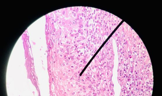 Tumore ovarico, niraparib dopo chemioterapia prima linea