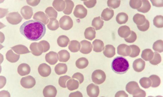 Nuove opportunità di cura per la Leucemia acuta mieloide