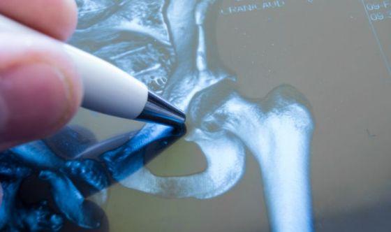 Fratture d'anca e gastroprotettori