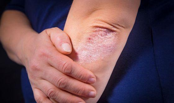 Psoriasi: la fototerapia ora sarà a domicilio