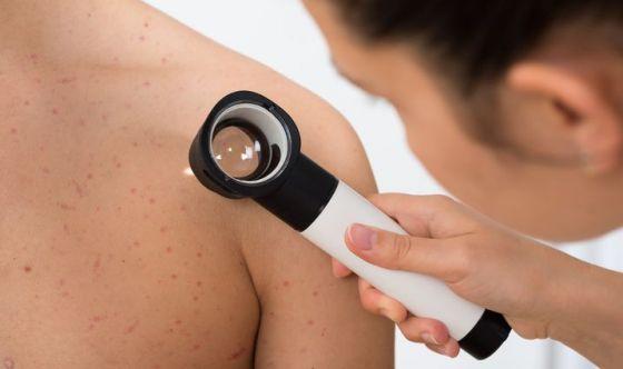 Melanoma avanzato: dimostrata efficacia di pembrolizumab