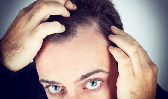 Perdita dei capelli? Aumentano ansia e depressione