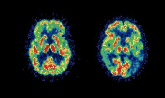 Esiste un legame tra personalità e struttura cerebrale