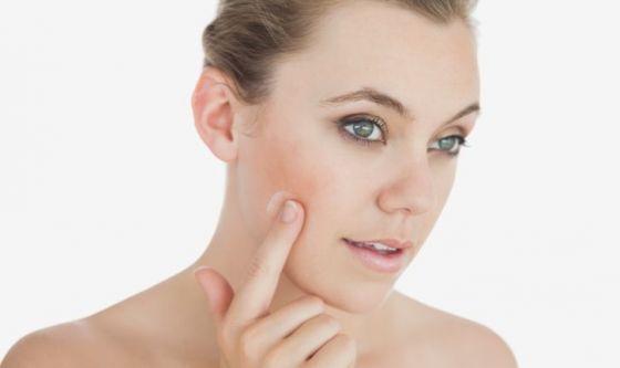 Un nuovo approccio al trattamento per l'acne