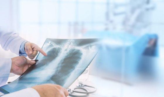 Un nuovo programma per prevenire il cancro al polmone
