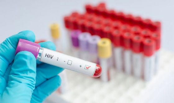 Scoperta una difesa naturale utile contro l'AIDS