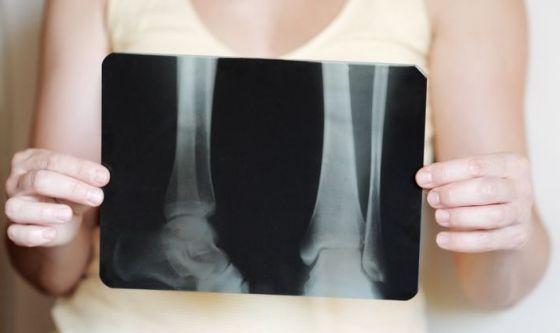 Diete alcaline per rinforzare le ossa? Gli studi dicono no