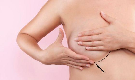 Protesi mammarie: nasce il registro internazionale