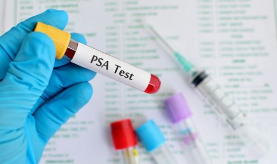 Un nuovo test sul PSA per individuare il tumore prostatico