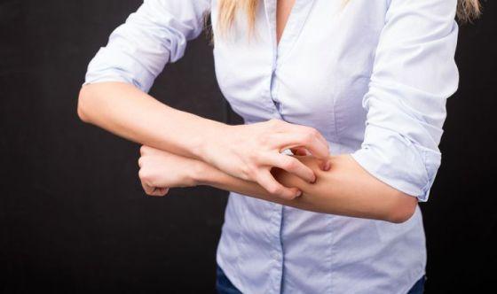 Psoriasi: l'84% dei malati è emarginato e umiliato