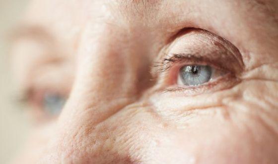 La psoriasi aumenta il rischio uveite