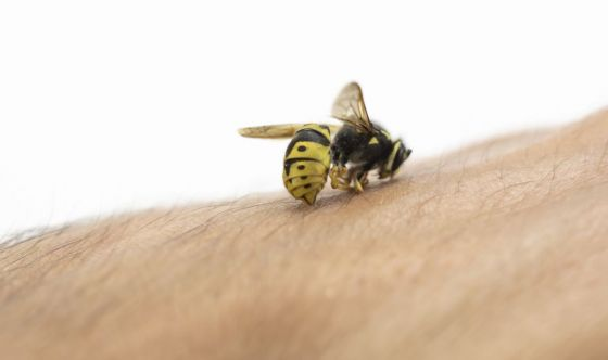Come trattare una puntura d'ape in modo naturale