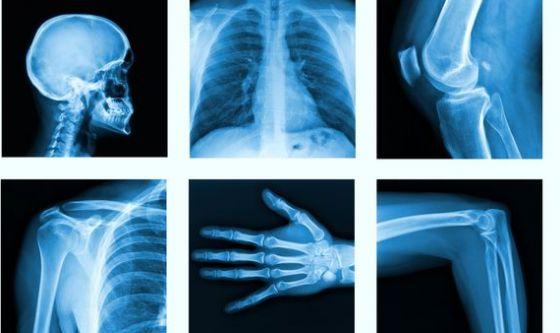Quaranta milioni di esami radiologici: sono troppi?