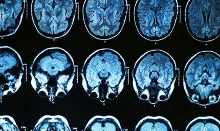 Radiochirurgia e cervello: cure più precise anche in Italia