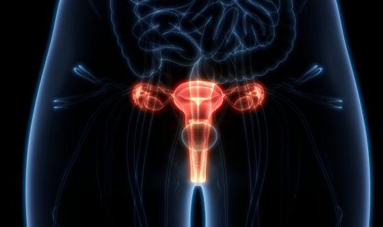 Nuove speranza per chi soffre di tumore all'ovaio