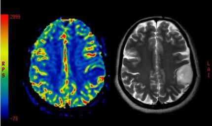 Scoperto vaccino contro tumore del cervello