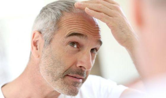 Perdita di capelli: la risposta nelle cellule staminali?