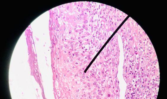 Naso elettronico per la diagnosi del carcinoma ovarico