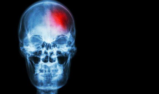 Una donna su 2 a rischio ictus, demenza, Parkinson