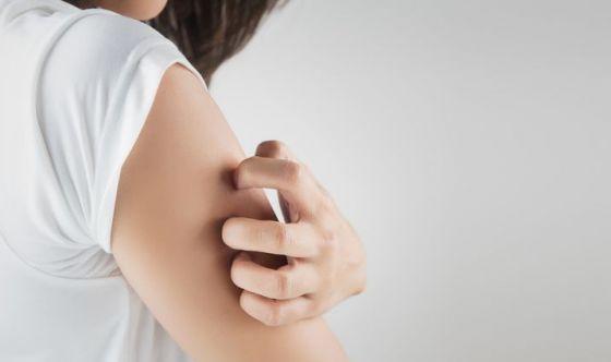 A giugno tornano le Giornate della Dermatite Atopica