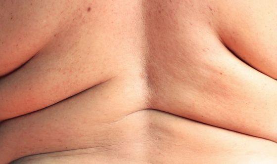 Sconfiggere l'obesità con due meccanismi bruciagrassi